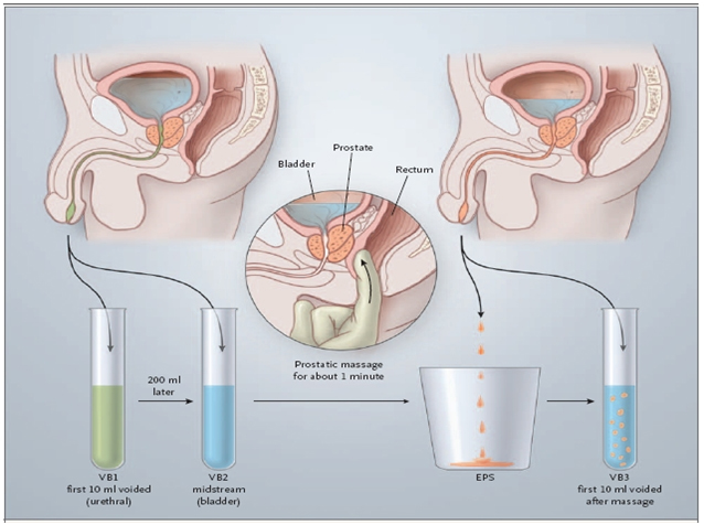 prostata massage berlin